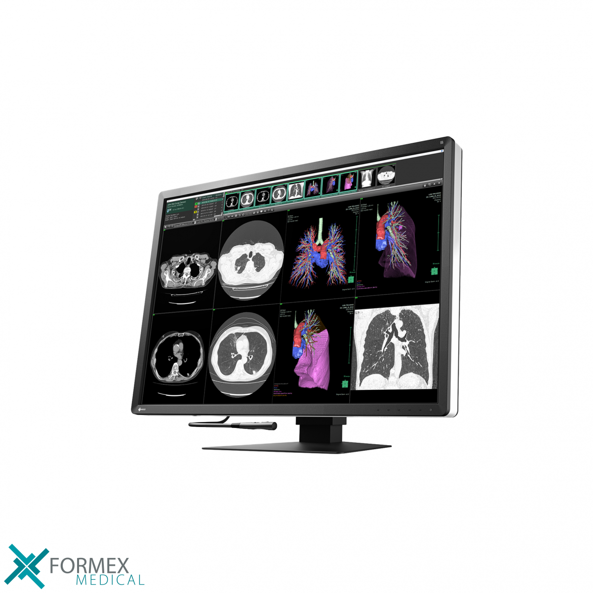 eizo monitor, medical displays, medische schermen, eizo medical monitor, medische monitoren, eizo medical, medische beeldschermen, diagnostische monitoren, diagnostiek monitoren